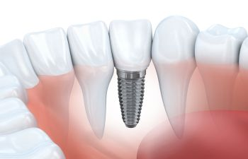Implant model of dental implants available in Marietta GA