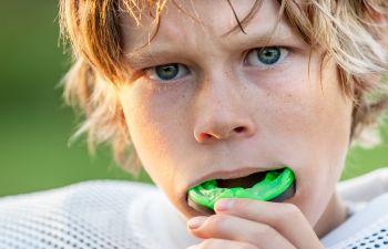 A boy putting mouthguards on his teeth Marietta GA