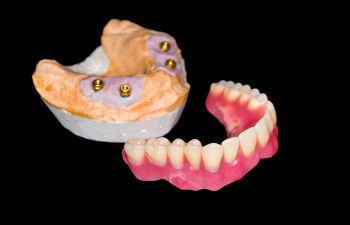 Implant-supported denture model