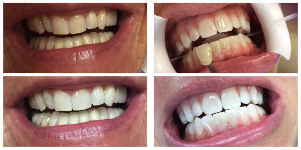 Patient's teeth before, during and  and after teeth whitening treatment in Marietta GA.