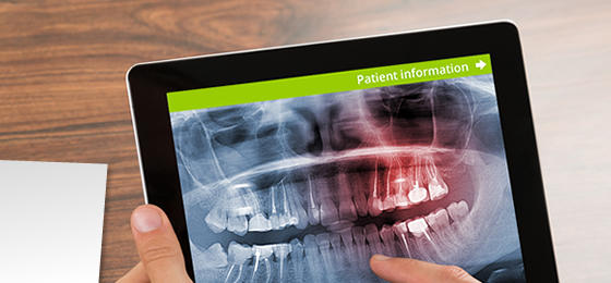 A dentist revising digital x-rays of haws and teeth.